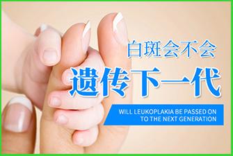 白斑会不会遗传下一代